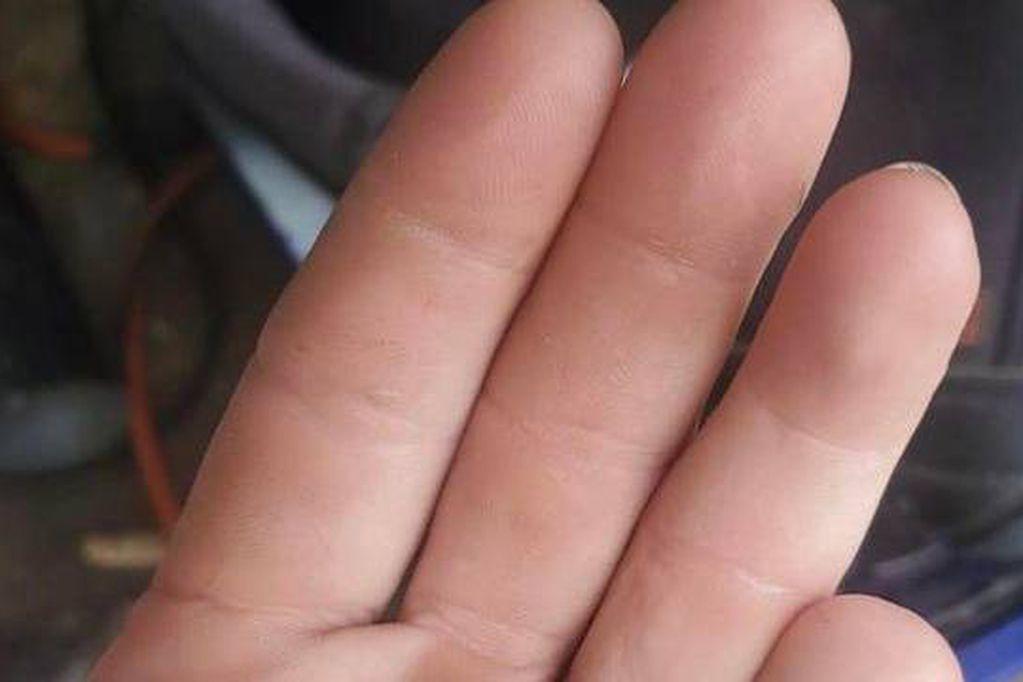 De no creer: se cortó el meñique con una sierra eléctrica y lo encontró seis meses después