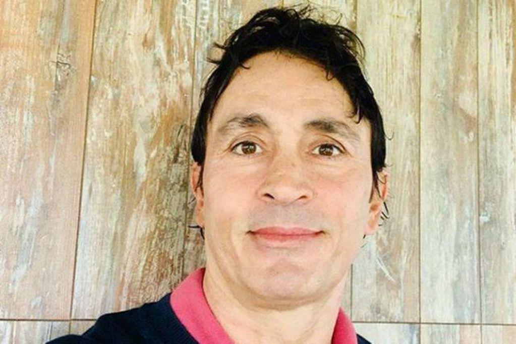 Video: Sebastián Estevanez mostró por primera vez las fotos de su rostro en carne viva