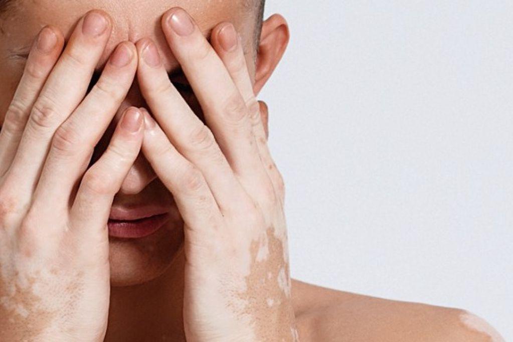 Vitiligo, más que solo manchas